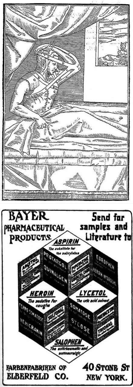 """Top: A skin grafting technique for treating syphilis injuries, used on the series """"The Knick."""" Bottom: Pre-1904 Ad for Bayer products, including Heroin"""