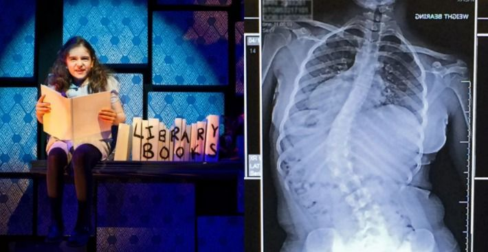 Girl Who Played Matilda In Theatre Production Now Needs Urgent Surgery.