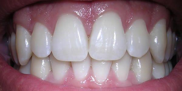 Quella dello sbiancamento dei denti è un'industria multimilionaria, ma molto spesso i prodotti chimici che [Leggi Tutto...]