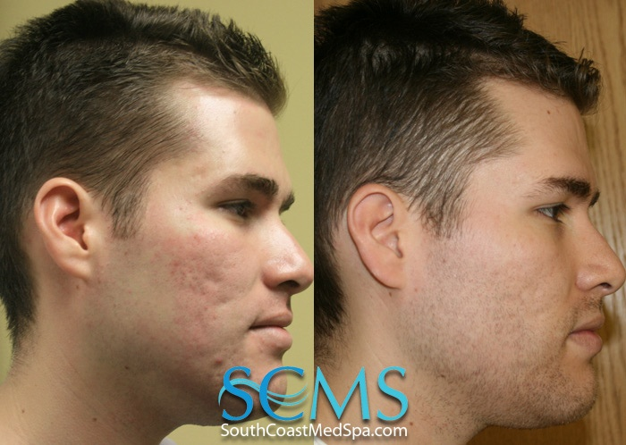 10 best laser acne scar removal images on pinterest acne scar south coast medspa laser acne scar removal how to get rid of acne scars ccuart Choice Image