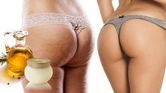 El asesino de la celulitis: Aplica estos dos ingredientes en tus muslos y glúteos!!