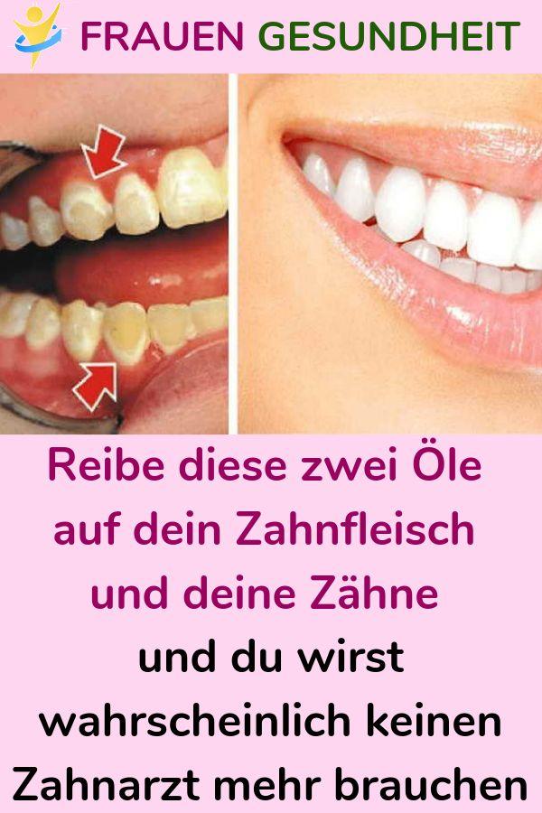 Reibe diese zwei Öle auf dein Zahnfleisch und deine Zähne