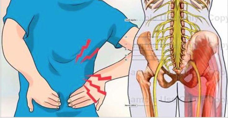 Como desbloquear o nervo ciático - 5 simples formas de eliminar a dor! | Cura pela Natureza
