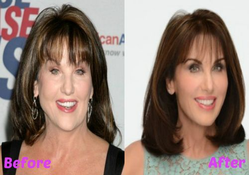 Robin Mcgraw facelift