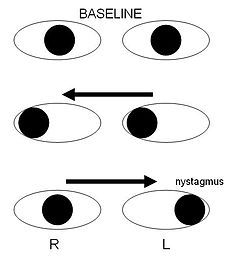 Internuclear ophthalmoplegia.jpg