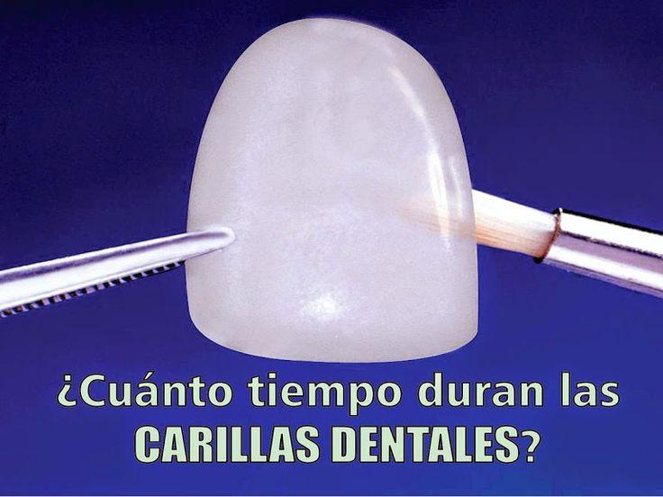 ¿Cuánto tiempo duran las carillas dentales? | Directorio Odontológico