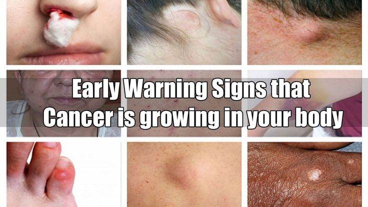 14 early warning signs that cancer is growing in your body - WATCH VIDEO HERE -> http://bestcancer.solutions/14-early-warning-signs-that-cancer-is-growing-in-your-body    *** ovarian cancer symptoms ***   14 early warning signs that cancer is growing in your body Here are  signs that are commonly ignored: 1. Wheezing or shallow breathing If you ask lung cancer patients what the first thing they noticed was, the majority would say it was their difficulty with...