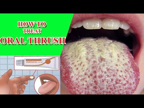 oral thrush treatment Treat Oral Thrush