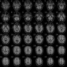 Functional magnetic resonance imaging - Wikipedia, the free encyclopedia