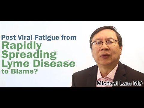 Post Viral Fatigue Natural Treatment