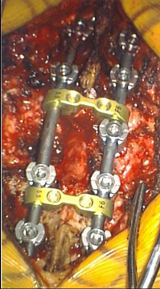 Mmmmm painful.  Spinal fusion. Talk about getting screwed.