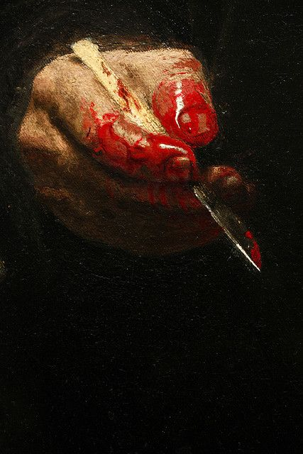 Detail of The Gross Clinic by Thomas Eakins, 1875.