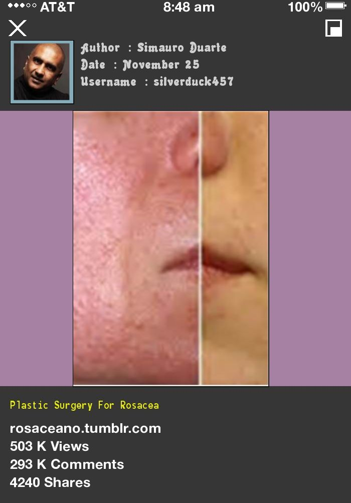 Plastic Surgery For Rosacea 042836 - Rosacea Free Forever.