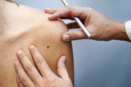 Les personnes rousses plus vulnérables face au cancer de la peau.