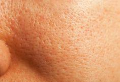 Os poros do rosto podem se tornar mais abertos e antiestéticos por diferentes causas. Nesse artigo você aprenderá como fechar os poros de forma natural e deixar a pele muito mais bonita. Confira!