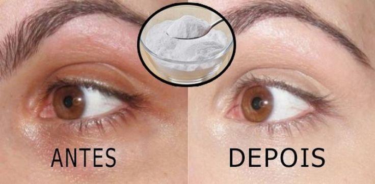 Tem dias que acordamos com verdadeiras marcas roxas ao redor do olho. As olheiras muitas vezes nos incomodam, e acabam prejudicando nossa aparência, com isso somos praticamente obrigadas a