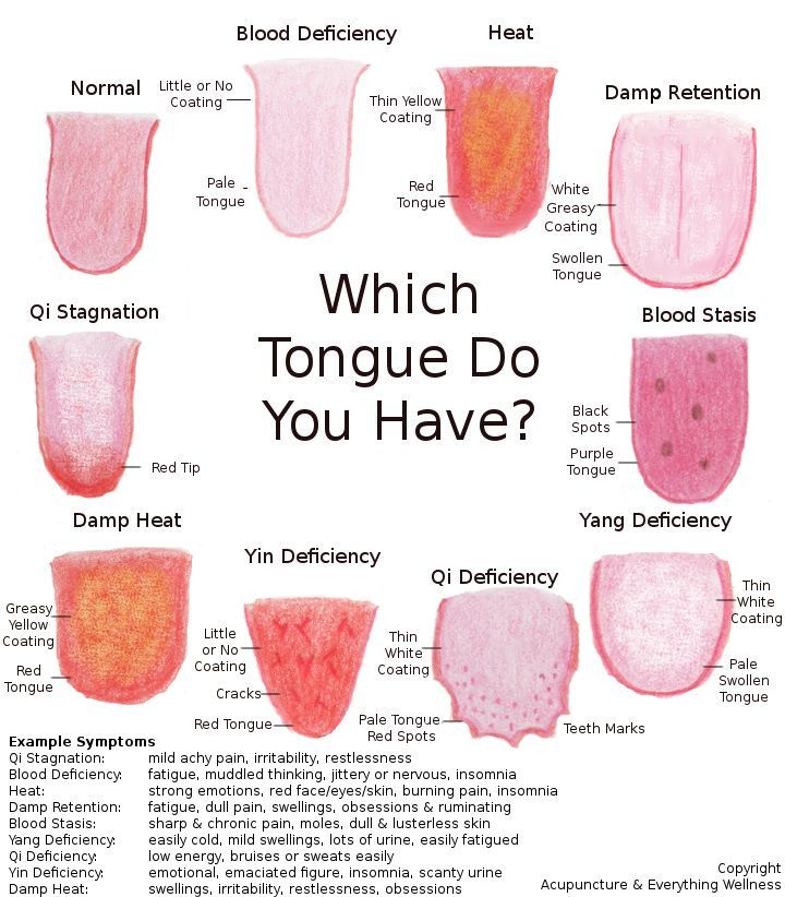An acupuncturist will often look at your tongue for information about your health. Here is what the tongue will say about you.