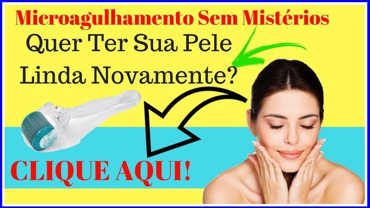 Microagulhamento Para Estrias - Flacidez - Cicatrizes - Celulites - Com ...