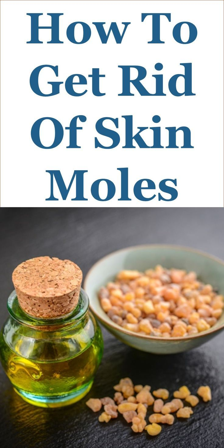 How To Get Rid Of Skin Moles – 27 Home Remedies: This Guide Shares Insights On The Following;  Garlic On Flat Moles, Fastest Way To Remove Moles, Aloe Vera For Mole Removal, How To Remove Mole With Honey, How To Remove Mole From Face With Garlic, It Works Paste Mole Removal, Garlic Moles Safe, Garlic Garden Moles, Etc.
