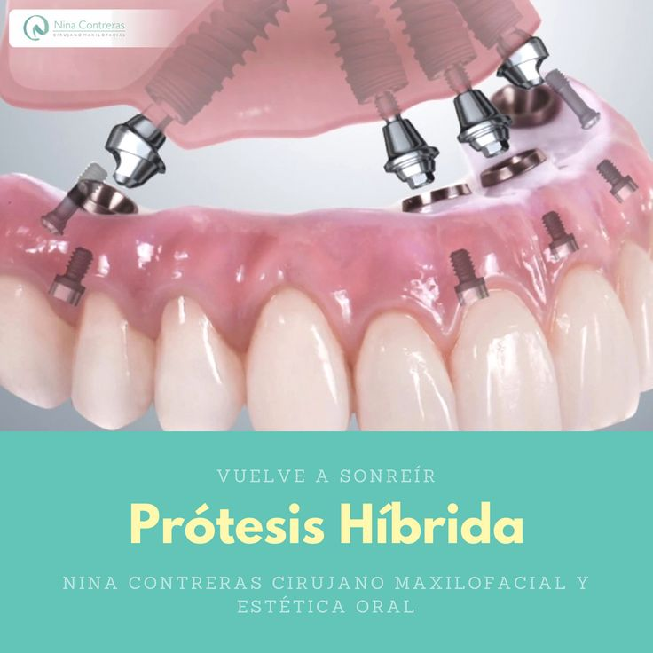 Especialistas en #prótesishíbrida En este Mes Invierte en Ti y Sonríe de Forma Natural Agenda tu #cita ya: ☎️ 6571629  300 8934528 #cirugía #ortognática #maxilofacial #ortodoncia #diseñodesonrisa #dentalimplants #orthognathicsurgery #surgery #maxillofacialsurgery #orthodontics #smiledesign #smile #teethwhitening #teeth #oralrehabilitation #oral #ninacontreras http://ninacontrerascmf.com/