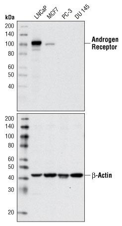 #5153 Androgen Receptor (D6F11) XP® Rabbit mAb | CST抗体