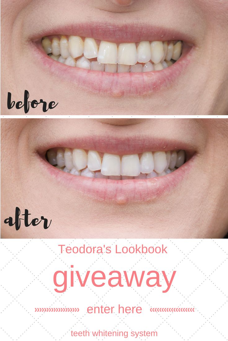 Enter to win a free teeth whitening system from Smile Brilliant valued at $149. I love my results.