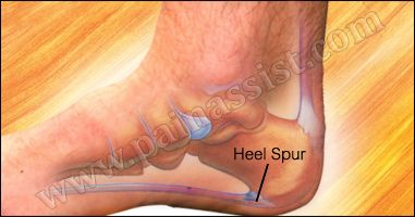 One of the common causes of heel spur is recurrent stress to the base of the heel which results in buildup of calcium deposits on the heel.. read: http://www.painassist.com/sports-injuries/foot-heel-injuries/heel-spur-calcaneal-spur