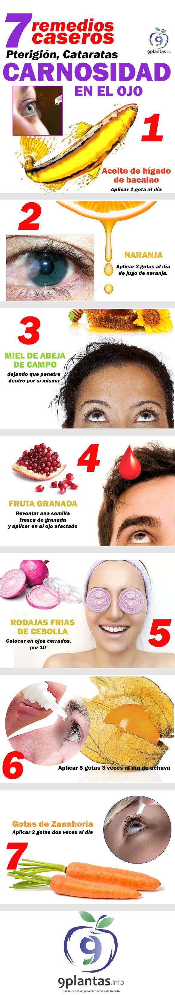 Los mejore 7 remedios caseros para combatir cataratas en los ojos