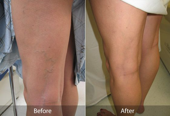 How to Get Rid of Spider Veins Naturally Without Surgery - http://www.howtogetridofspiderveins.net/