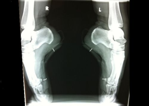An x-ray of Polina Semionova's feet en pointe...I always knew that the toes were crammed in there ;-) pretty cool tho!