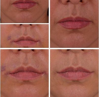 The mouth corner lift progress after 7months. The mouth ...