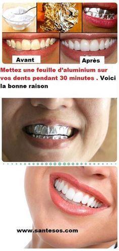 dent blanche aluminium