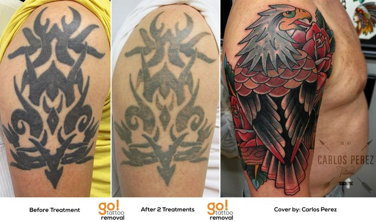 Heavy Black Tattoo Cover Up: 96 Best Tattoo Removal To Tattoo Cover-Up Images On