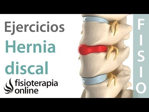 Hernia discal lumbar - Diagnóstico, consejos, ejercicios y tratamiento de fisioterapia - YouTube