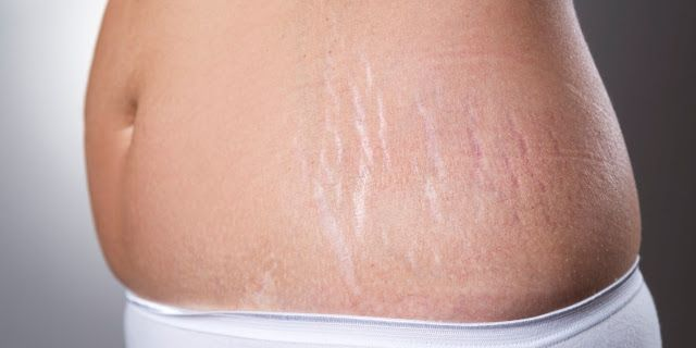 List of Natural Cure To Eliminate Stretch Marks