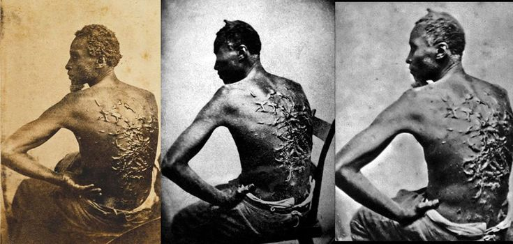 """Three different photographs of Peter, a slave from Baton Rouge, Louisiana, ca. 1863. The scars are a result of a whipping by his overseer Artayou Carrier, who was subsequently fired by the master. It took two months to recover from the beating. These photographs were widely distributed in the North during the war. Also called """"Gordon"""", Peter later enlisted in the Union Army."""