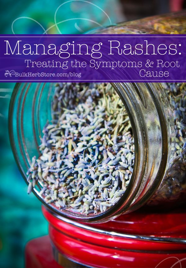 Herbal First Aid – Managing Rashes: Treating the Symptoms and Root Cause - Bulk Herb Store Blog
