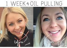 One pinner said: Why I'm Obsessed with Oil Pulling, intensely whiter teeth after only 1 week!