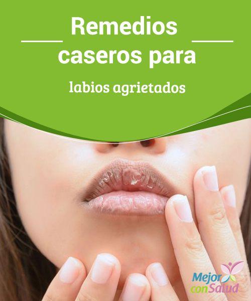 Remedios caseros para labios agrietados  El frío, el sol o la falta de humectación son solo algunos de los principales enemigos de los labios, cuya piel es demasiado sensible.