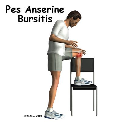 I am adding this specific bursitis of the knee, because my knee decided I didn't have enough to deal with, in having bad bursitis in both hips and has now jumped on board the inflammation train that is my body.
