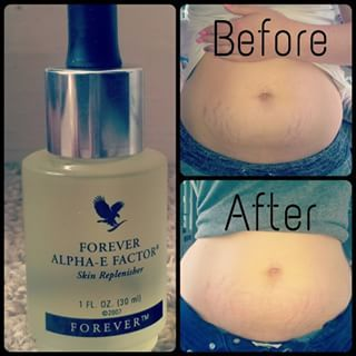 Do you have stretch marks? Get rid of them now :)