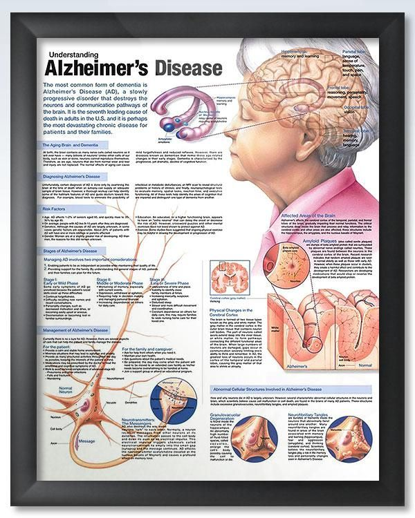 plasmids expressing human tau to further understand alzheimers disease Amyloid-beta and tau are proteins which are known to be linked to the development of alzheimer's disease the expression of amyloid-beta and tau plasmids will.