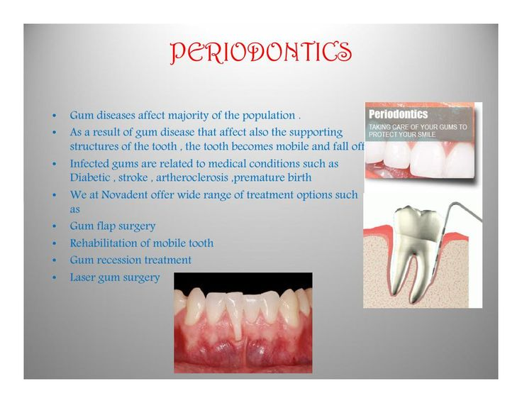 PERIODONTICS Gum diseases affect majority of the population . As a result of gum disease that affect also the supporting structures of the tooth , the tooth becomes mobile and fall off. Infected gums are related to medical conditions such as Diabetic , stroke , artheroclerosis ,premature birth  We at Novadent offer wide range of treatment options such as  #DentalTreatment #DentalClinic #DentalSpecialist #kannur #kerala #dentalclinic #dentalcare