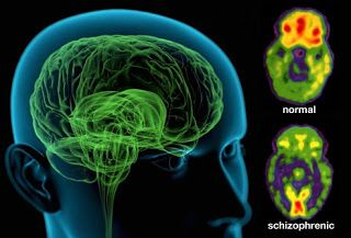 This photo is comparing brains of a normal, healthy person and a person diagnosed with Schizophrenia. It is interesting to look at the differences due to the chemical imbalance and possible heredity factors that cause Schizophrenia. -RM