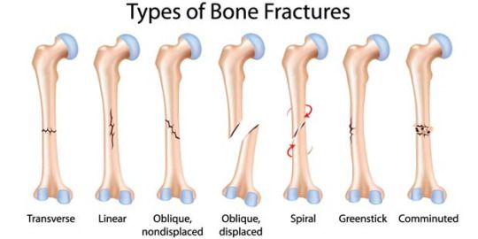 Causes and treatments of bone fractures essay
