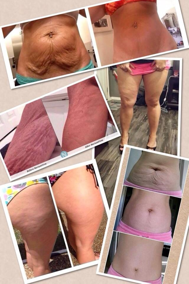 Fabulous before and afters. One cream. Nerium Firm. Click the photo to try it yourself! #cellulite #babies #nerium