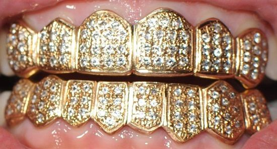 Dentaltown - How much would you pay to have this amazing set of solid gold Hip Hop Hollywood grills for your teeth? Which is your favorite grill?