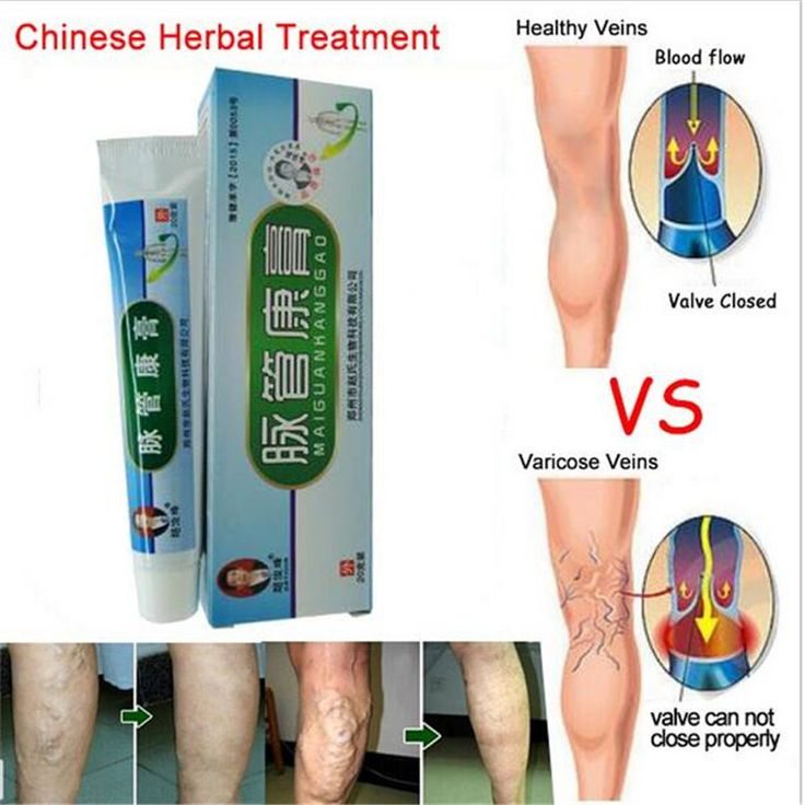 Varicose Veins Cream Treatment Local  Of  Pain Due To Leg Numbness  Vasculitis  Caused Phlebitis  Varicose Veins Ointment S188H
