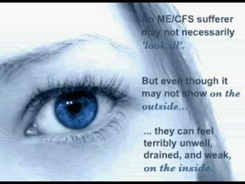 """""""M.E. / Chronic Fatigue Syndrome - Sleepydust Video"""" The video aims to help the friends and family of ME/CFS (including Myalgic Encephalomyelitis (M.E.), Chronic Fatigue Syndrome (CFS), and Post Viral Fatigue Syndrome) sufferers understand the illness and what their loved ones are going through. (9:00) I can't endorse the site that posted this video, or its free newsletter."""