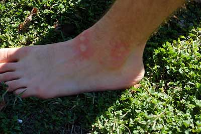 How to Treat Fire Ant Bites | The Survival Doctor   I had to use this on poor Will today and it actually worked great!